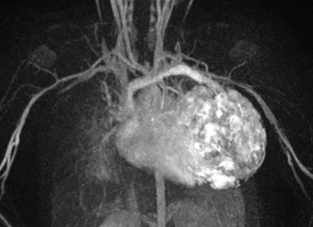 Jerusalem Vascular Hemangiomas
