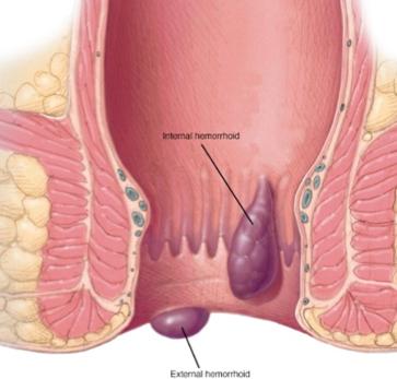 Jerusalem Vascular Hemorrhoid Symptoms