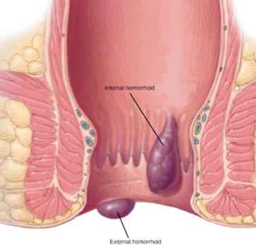 Jerusalem Vascular Hemorrhoid Symptoms